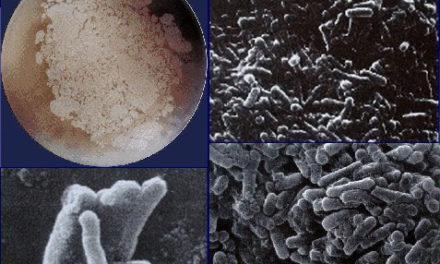 Sulla scoperta dei cristallomicrobi Cryms, batteri in animazione sospesa
